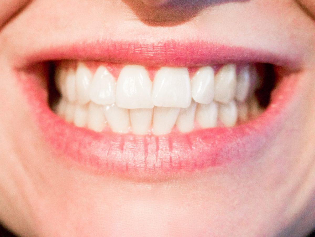 Nowoczesna technika używana w salonach stomatologii estetycznej może sprawić, że odbierzemy śliczny uśmieszek.